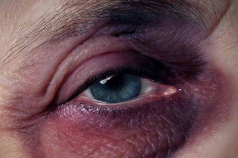 Ojos morados: por qué aparecen y cuánto duran