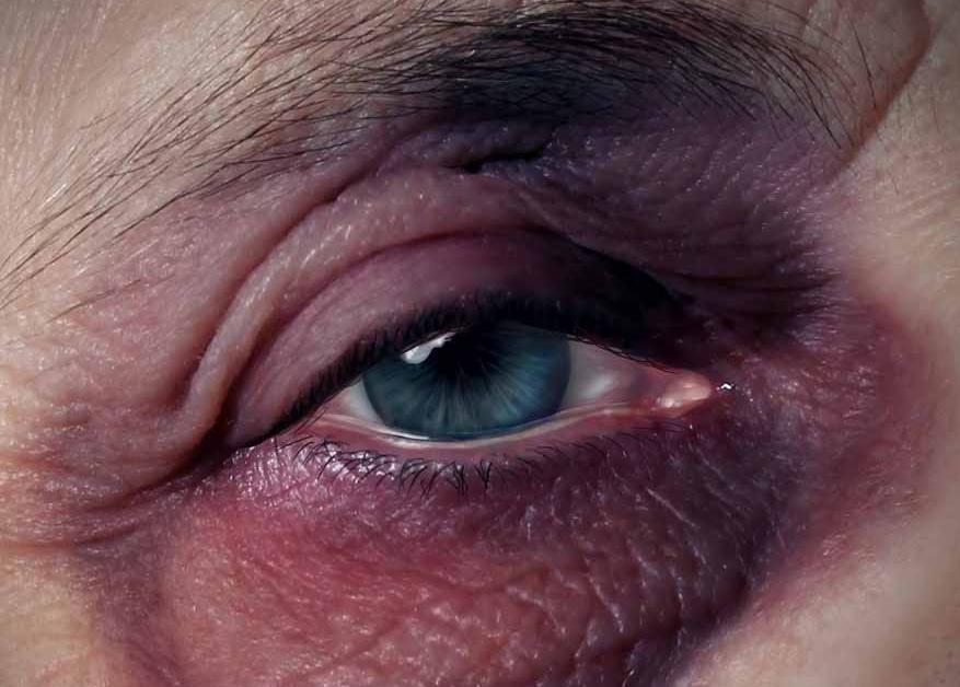 Como arreglar las arrugas bajo los ojos las revocaciones