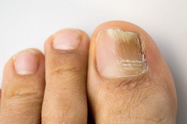 onicomicosis-sintomas