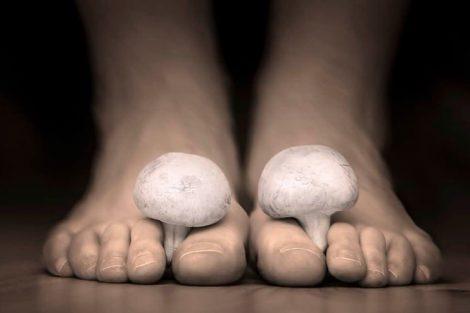 Onicomicosis (infección por hongos en las uñas): todo lo que debes saber