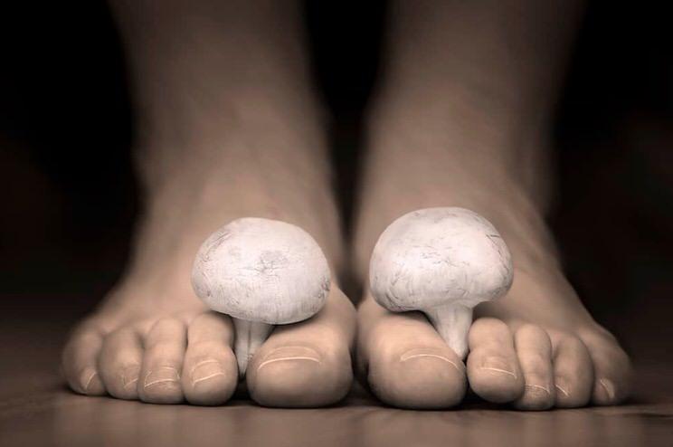 Onicomicosis (uñas)