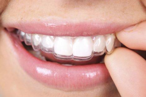 Ortodoncia invisible: qué es, tipos, precio y ventajas