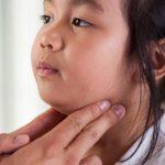 Paperas: qué son, síntomas, causas y tratamiento de la parotiditis