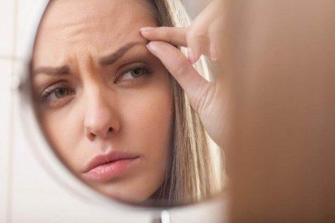 Párpados hinchados: cómo tratarlos con estos remedios naturales
