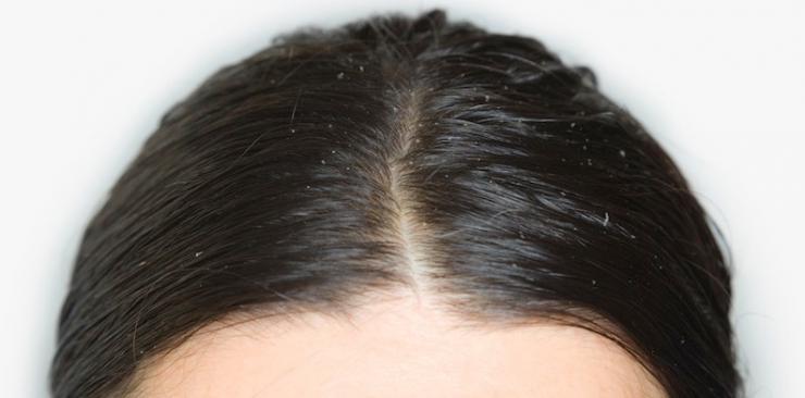 Consejos contra el cabello graso