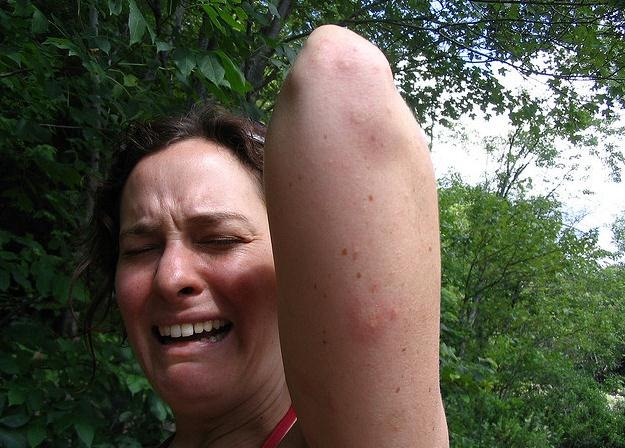 ¿Por qué las picaduras de mosquito pican?
