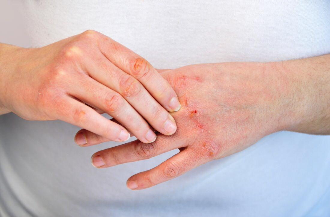 El picor de la dermatitis atópica