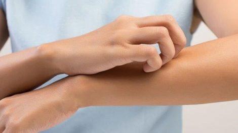 Consejos naturales para aliviar el picor de la piel