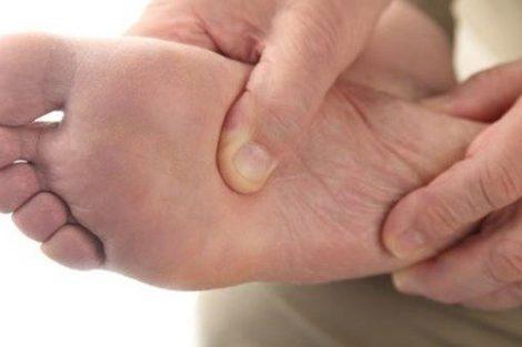 Pie diabético: qué es y cuáles son sus síntomas