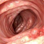 Pólipos en el colon ¿son peligrosos? Síntomas y tratamiento