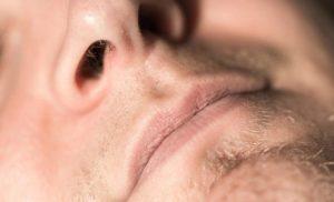 Pólipos nasales (masas o bolitas en la nariz): qué son, síntomas y tratamiento