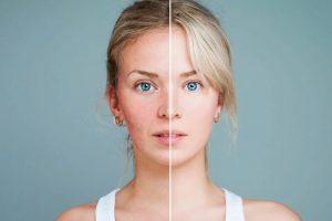 Remedios para los poros abiertos