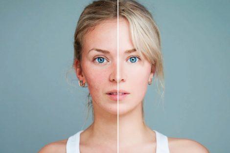 Cómo evitar los poros abiertos o dilatados