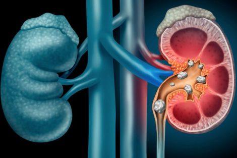 Potasio alto: síntomas, causas, por qué sube y cómo bajarlo