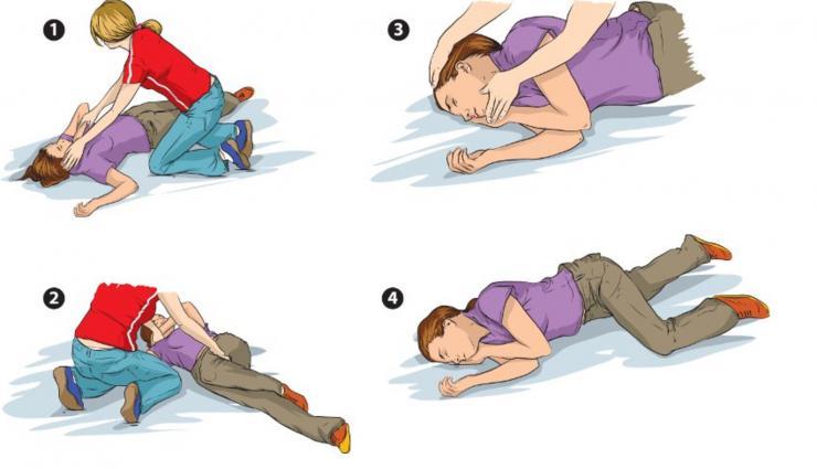 Cómo actuar ante una convulsión