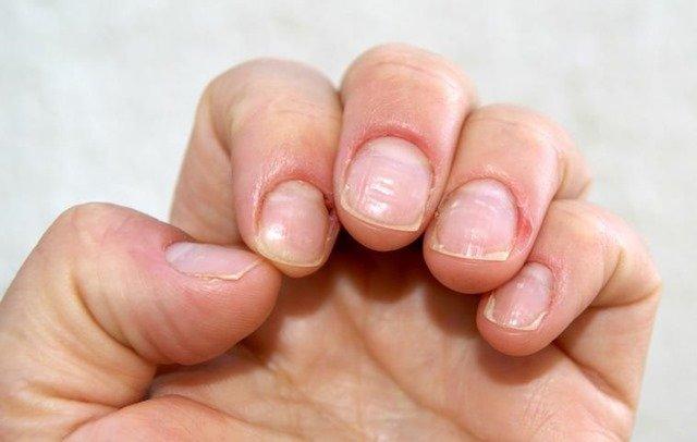 Principales enfermedades de las uñas