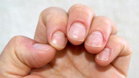 Problemas de las uñas
