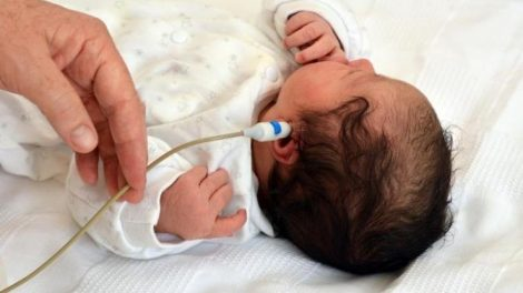 La importancia de la prueba del oído en los bebés