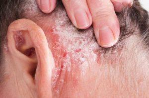 Qué es la psoriasis, síntomas, causas y tratamiento