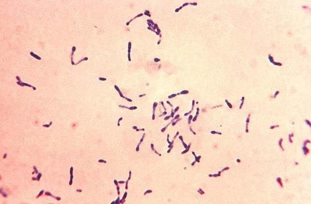 Qué es la difteria