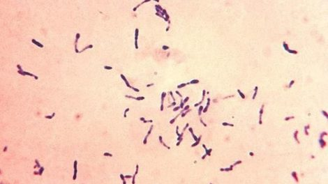 ¿En qué consiste la difteria?