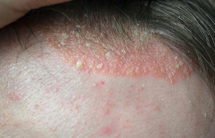 En qué consiste la psoriasis