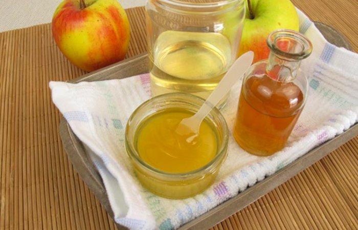 Remedio de vinagre para los piojos