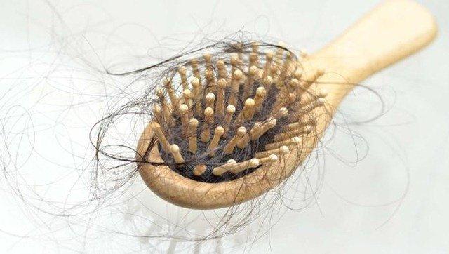 Consejos naturales para detener la calvicie