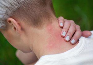 Cómo curar las picaduras de mosquito con estos remedios naturales