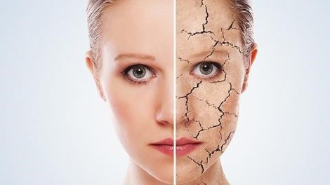 Consejos para mejorar la piel agrietada naturalmente