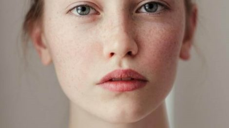 Remedios para iluminar la piel naturalmente