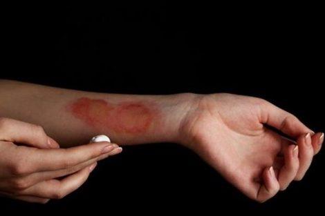 Consejos naturales para aliviar las quemaduras superficiales