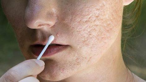 Remedios naturales para el acné rosácea