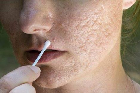 Remedios naturales para aliviar los síntomas del acné rosácea