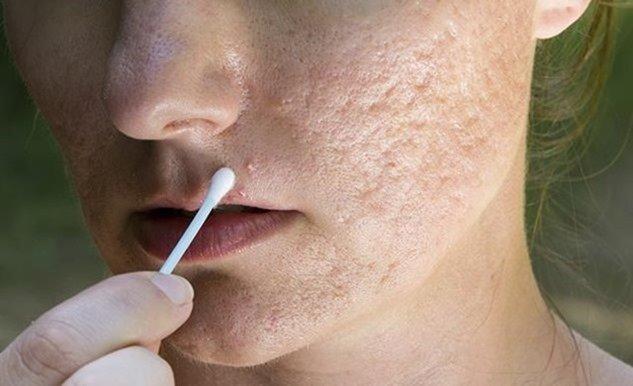 Cómo aliviar el acné rosácea con remedios caseros