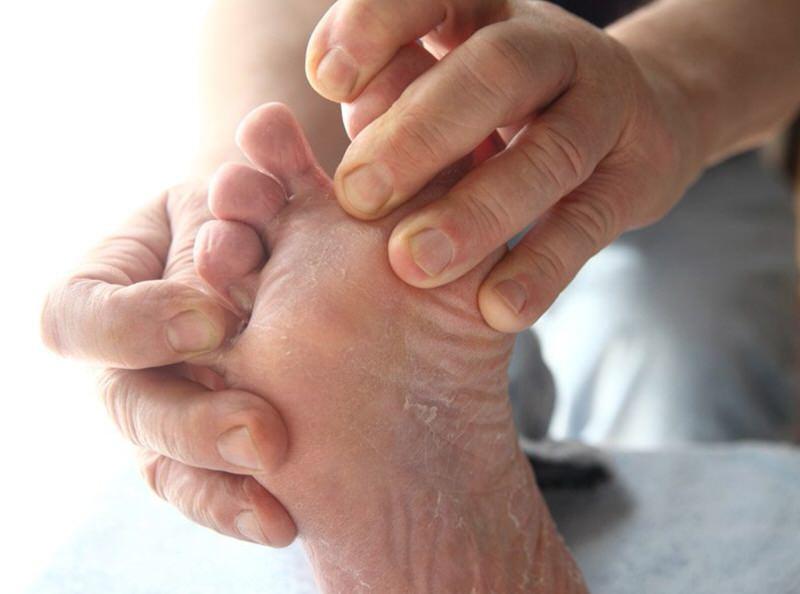 Consejos para cuidar el pie diabético