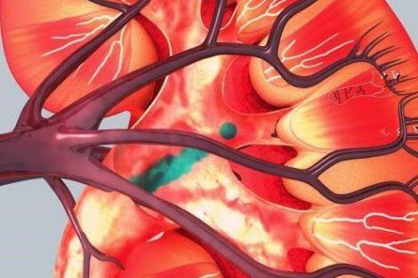 Cómo romper las piedras de los riñones naturalmente
