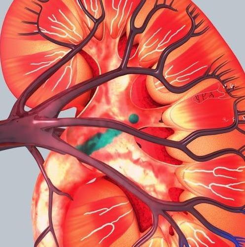 Consejos naturales para romper los cálculos renales