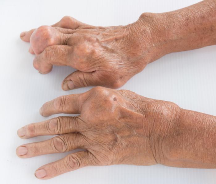 Sintomas del acido urico alto