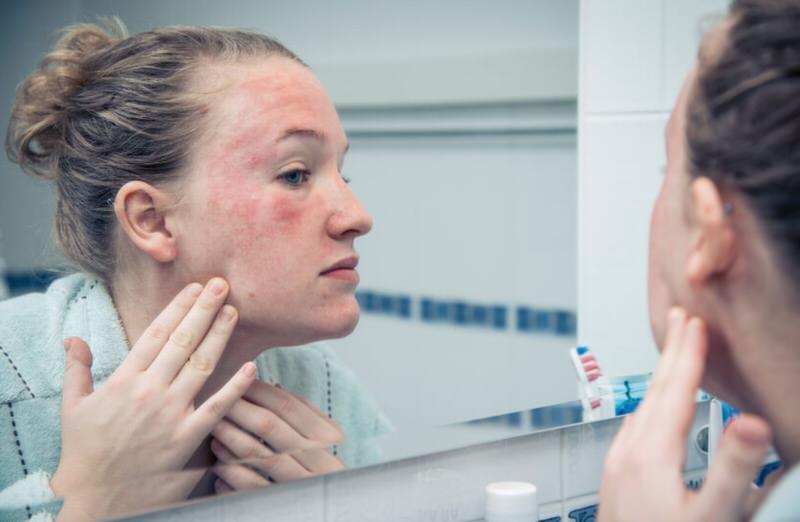 Señales de la alergia al maquillaje