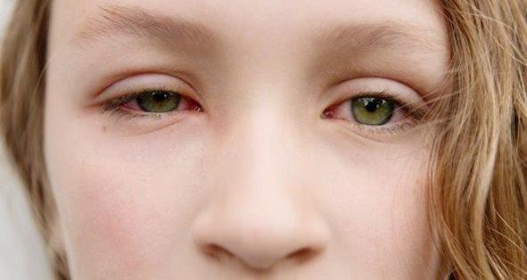 sintomas-conjuntivitis