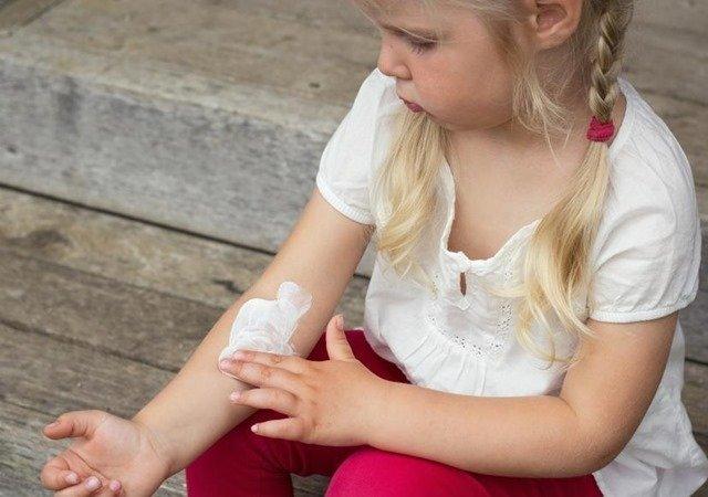 sintomas-dermatitis-atopica