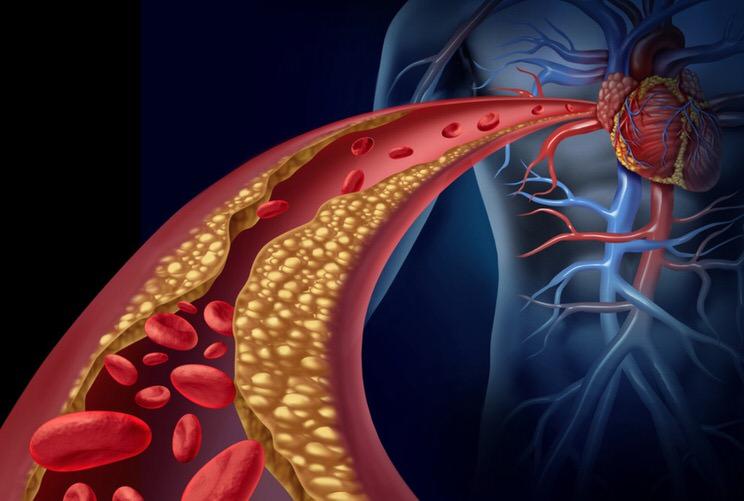 Hipertensión arterial y corazón