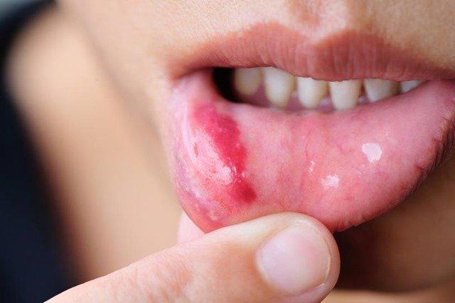 sintomas-llagas-boca