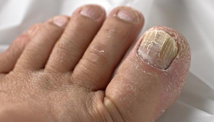 Síntomas de la infección por hongos en las uñas