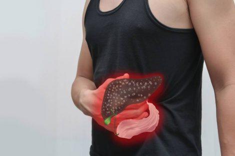 ¿Cómo saber si tengo problemas en el hígado? Síntomas de alerta