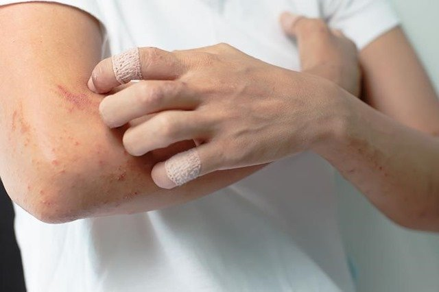 sintomas-virus-zika
