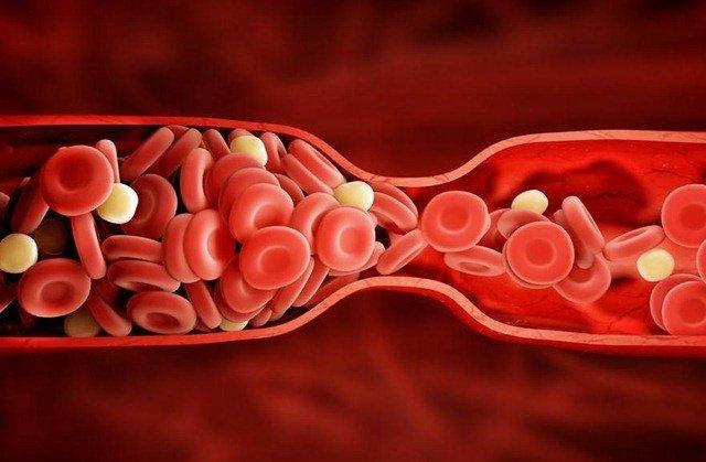 El Sintrom es uno de los medicamentos anticoagulantes más conocidos