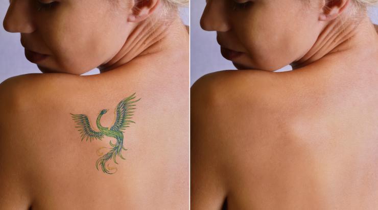 Duele Hacerse Un Tatuaje Mitos Y Consejos útiles