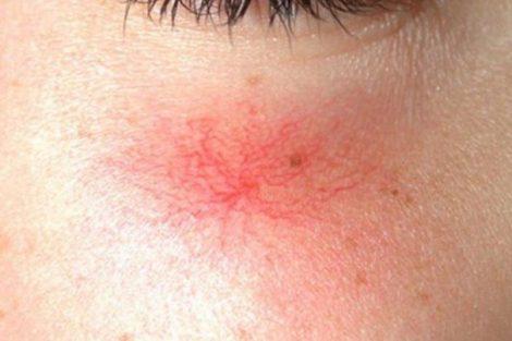 Telangiectasias o arañas vasculares: qué son, cómo se tratan y cómo prevenirlas